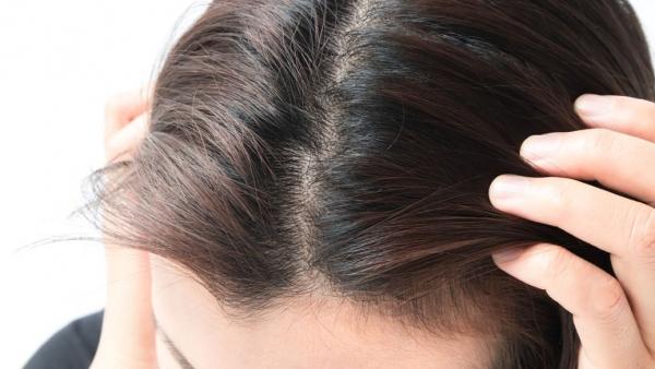 植物养发馆加盟小编带你了解养发护发小常识:白发、脱发人群需知的养发秘籍